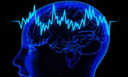 Vídeo Eletroencefalografia