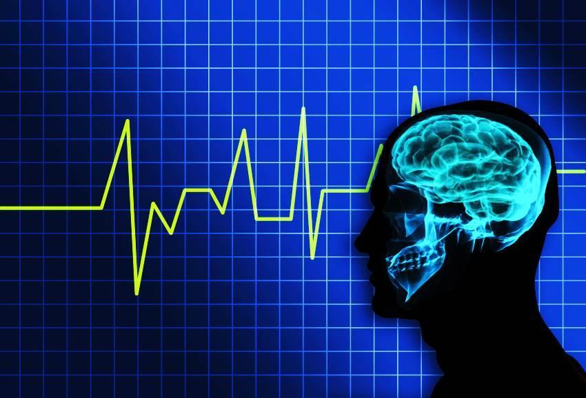 Vídeo Eletroencefalograma Prolongado de 12 Horas